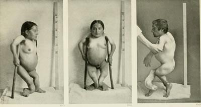 <p><strong>3</strong>.  İnsan kalıtımının bilgi hazinesi, 1909. M.B. 40 yaşında kadın, boy 86 cm,  M.B. nin erkek kardeşi boy 96 cm. El ve ayaklarda, uzun kemiklerde görülen  eğriliğin eşlik ettiği raşitizmli cüce kardeşlerde görülen büyüme<br />Kaynak: commons.wikimedia.org/wiki/File:Treasury_of_human_inheritance_(1909)_(14596814347).jpg?uselang=tr [Erişim: 10.01.2017]